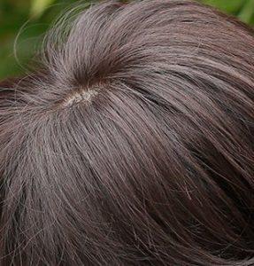 人毛と人口毛がミックスされた医療用かつら